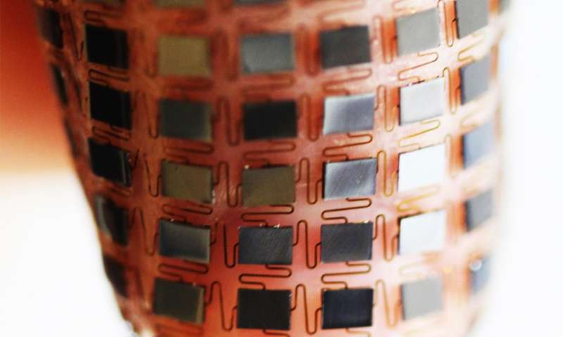 stretchable-battery